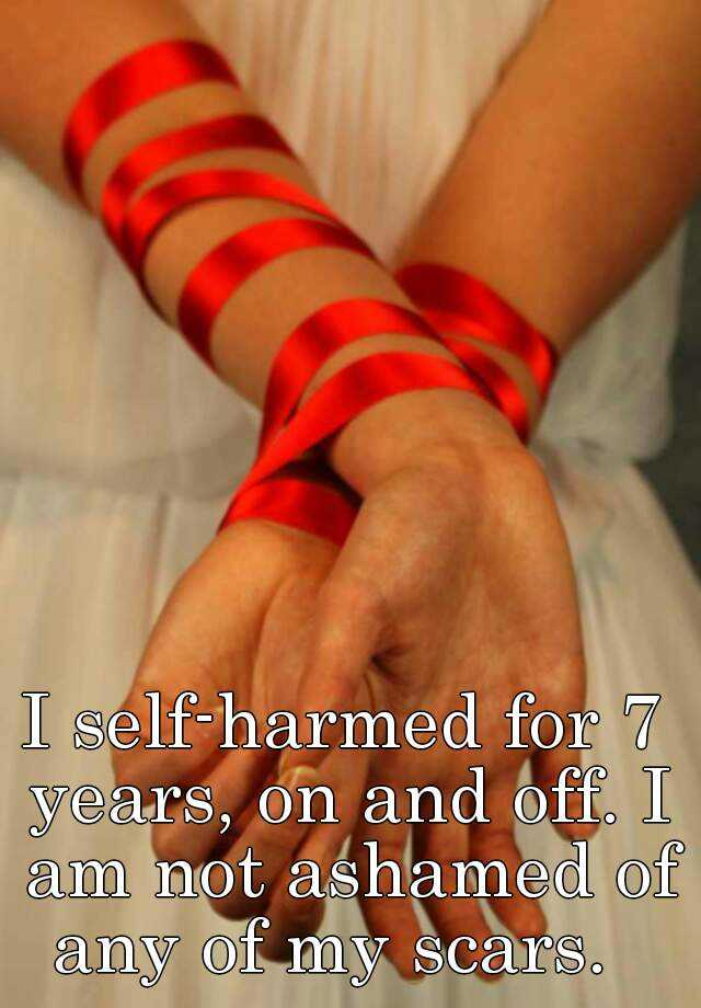 I self-harmed for 7 years, on and off. I am not ashamed of any of my scars.